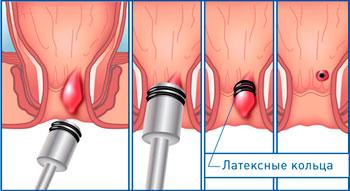 Секс пленками латексными кольцами